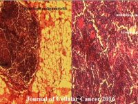 Figure. 3 Shows poor differentiated squamous cell carcinoma revealed the iiregular neoplastic