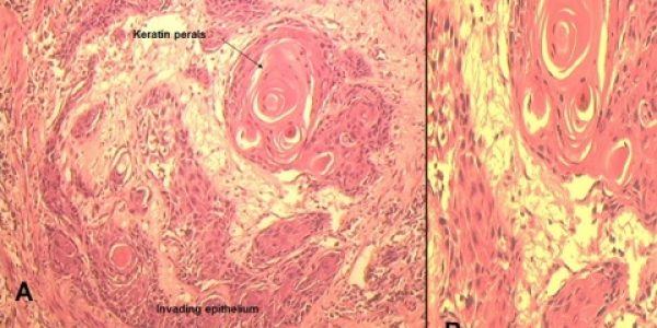 Figure1 Shows well differentiated squamous cell carcinoma revealed the invading neoplastic